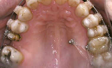 IMAG ortodoncia avanzada4