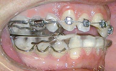 IMAG ortodoncia avanzada6